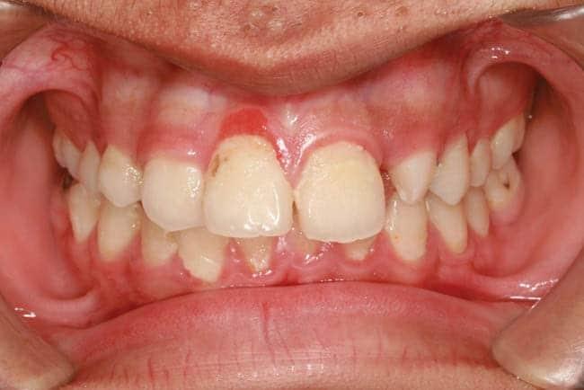 Zahnschmerzen durch Gingivitis