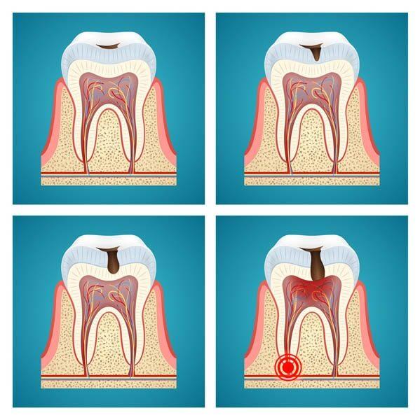 Zahnschmerzen durch Karies