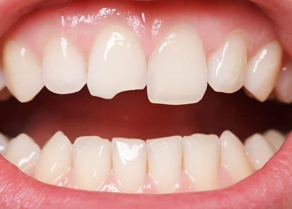 Zahnschmerzen durch gebrochenen Zahn