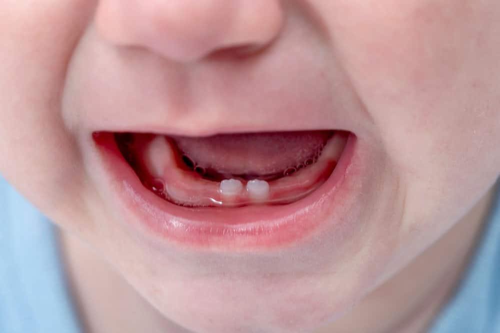 Zahnschmerzen durch Zahndurchbruch