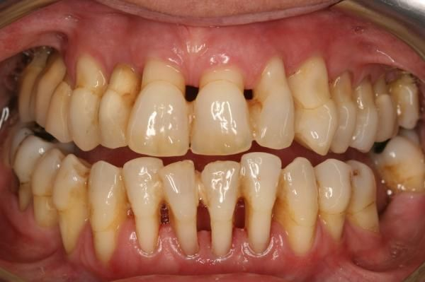 Zahnschmerzen durch Parodontitis